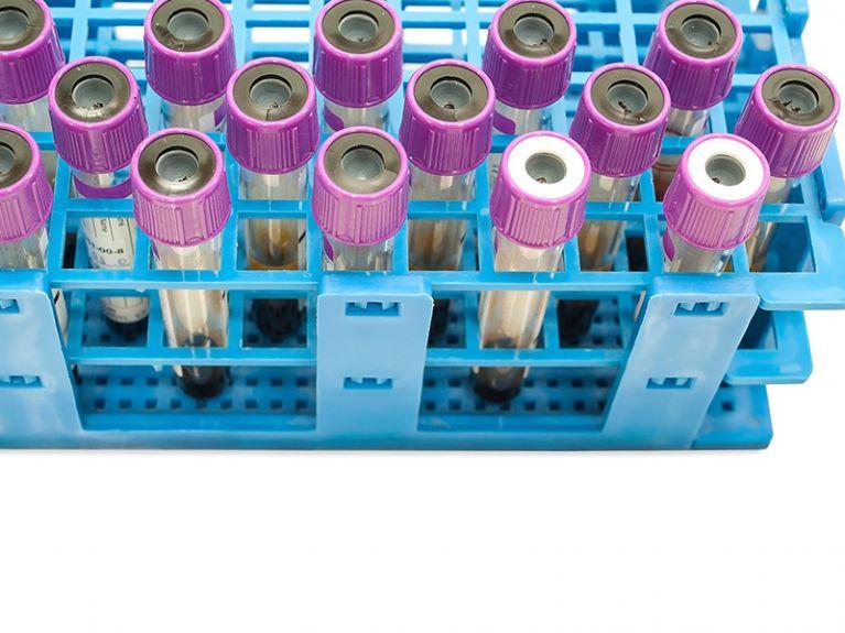 Analisi Cliniche Clamidia Agrigento